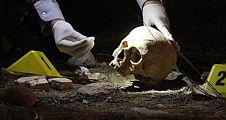 Polis, kafatasının sırrını takma dişten çözdü